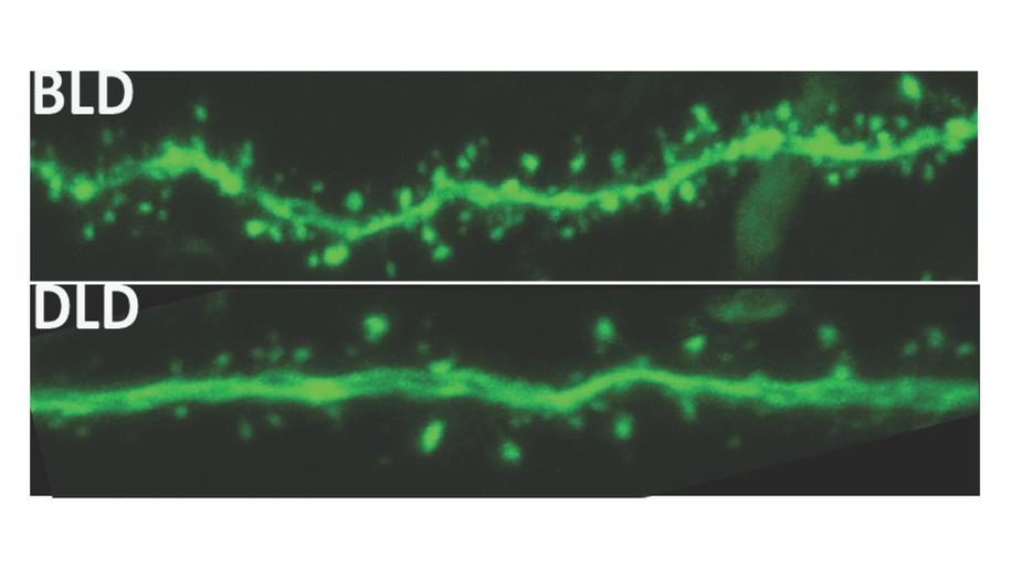 Dendryty komórek szczurów trzymanych w przyciemnionym świetle (DLD) mają znacznie mniej odbierających bodźce kolców /Michigan State University /Materiały prasowe
