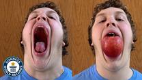 Dentysta czegoś takiego nie widział! Nastolatek w księdze rekordów Guinessa