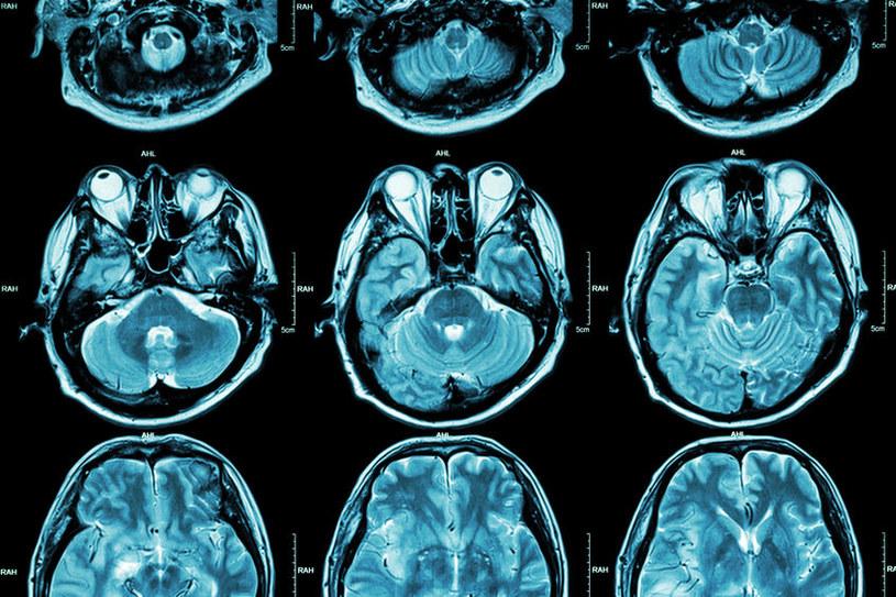 Diagnostyka i leczenia aury migrenowej /123RF/PICSEL