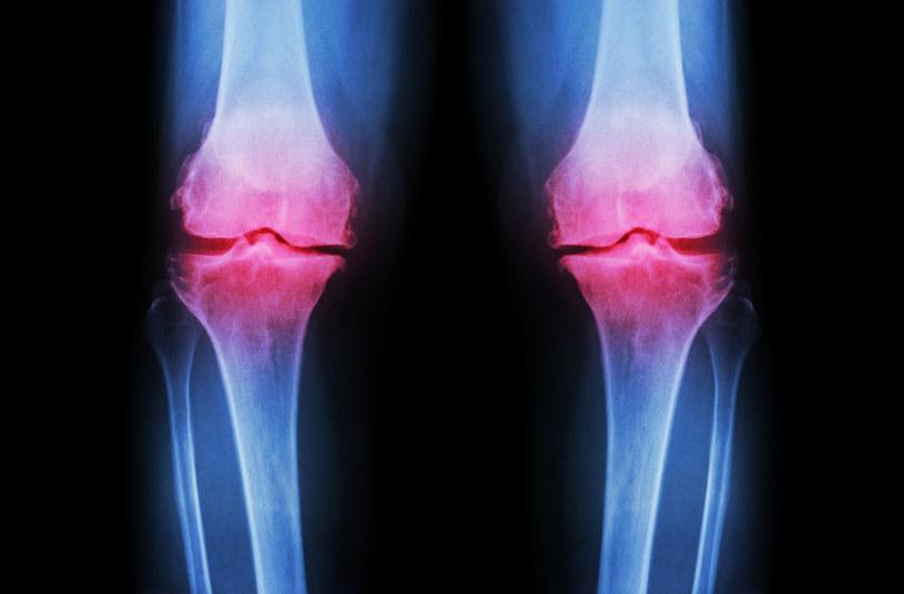 Diagnostyka i leczenie /©123RF/PICSEL