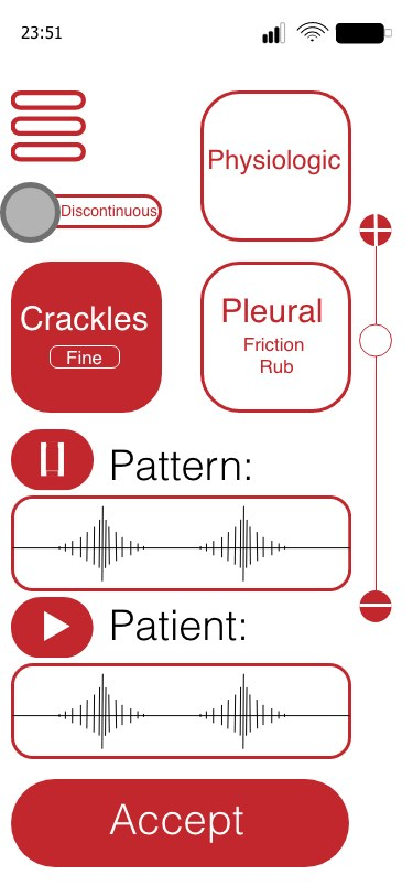 Diagnostykę wesprze specjalna aplikacja: lekarz będzie mógł porównać to, co słyszy (u dołu), ze wzorcem (u góry) /Materiały udostępnione nam przez twórców cyfrowego stetoskopu /