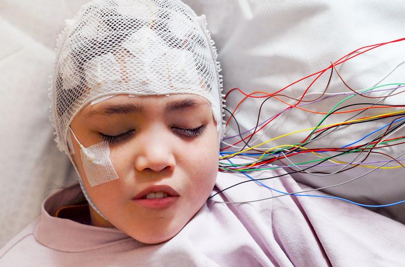 Diagnozowanie epilepsji /©123RF/PICSEL