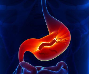 Dieta przy zakażeniu bakterią Helicobacter pylori