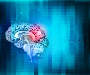 Dieta zapobiegająca udarowi mózgu