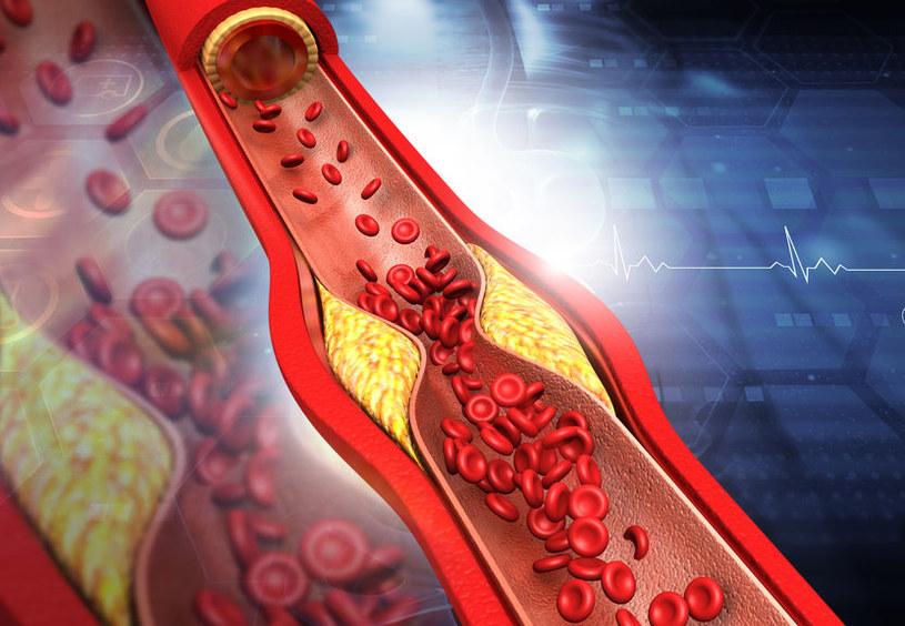 Dlaczego hipercholesterolemia jest tak niebezpieczna? /©123RF/PICSEL