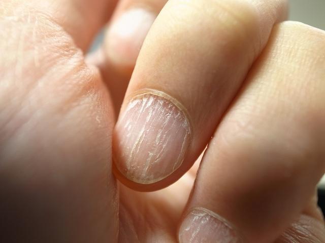 Dlaczego mam łamliwe paznokcie /© Photogenica