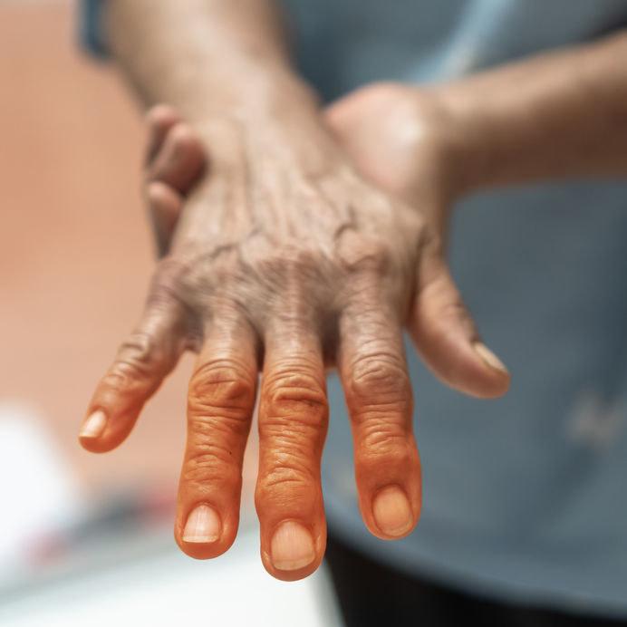Dlaczego skóra dłoni jest czerwona? /©123RF/PICSEL