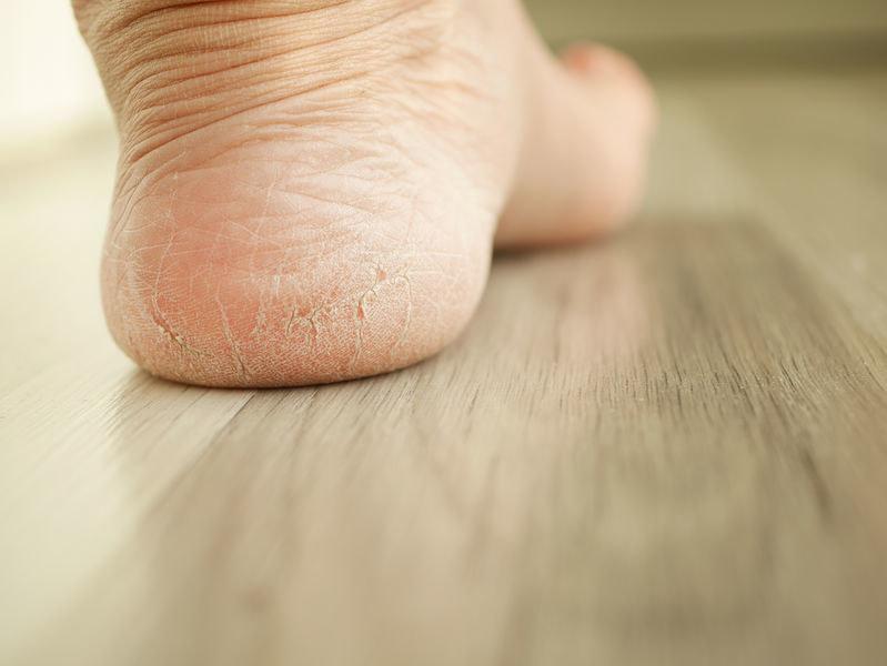 Dlaczego skóra na piętach pęka? /©123RF/PICSEL