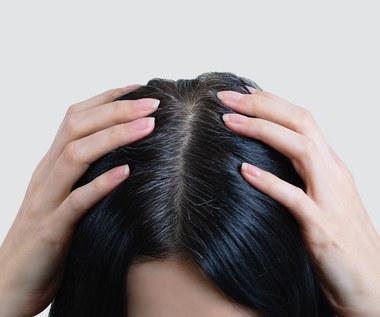 Dlaczego w młodym wieku pojawiają się siwe włosy?