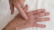 Dłonie - ujmij im lat