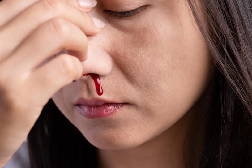 Dłubanie w nosie może prowadzić do wystąpienia krwawienia /123RF/PICSEL