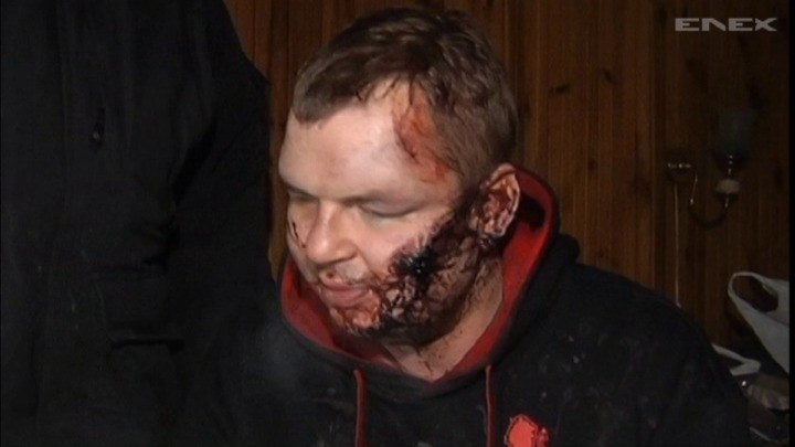 Dmytro Bułatow pojawił się w jednej z podkijowskich wsi. Na ciele ma ślady ciężkiego pobicia i tortur /TVN24/x-news /TVN24/x-news