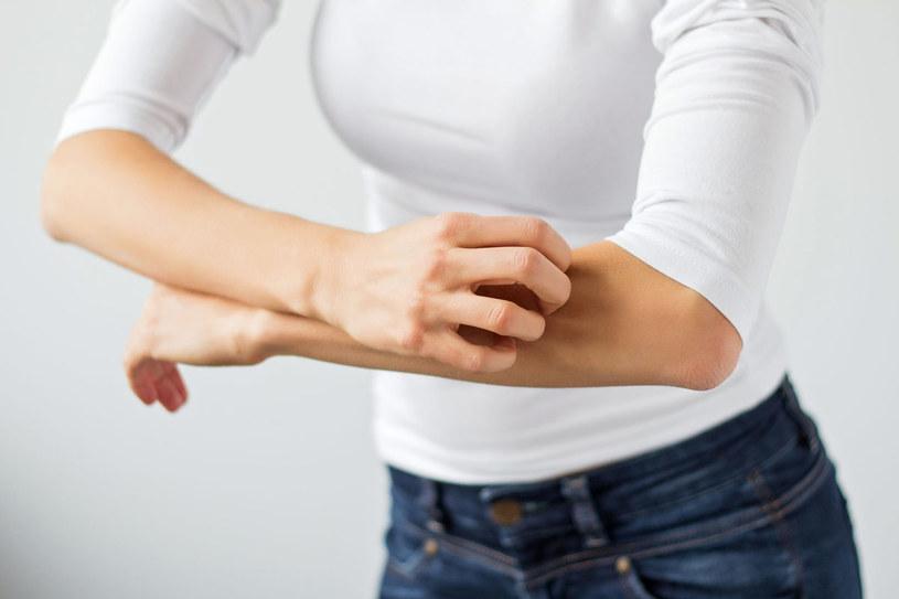 Do najczęściej pojawiających się objawów należą zmiany na powierzchni skóry w okolicach zgięć, czyli łokci i kolan /123RF/PICSEL