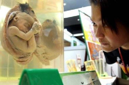 Do tej pory naukowcy sądzili, że ostateczny kształt twarzy ustala się w 5 tygodniu życia zarodkowego /AFP