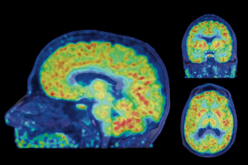 Do tej pory zmiany epigenetyczne można było obserwować tylko na martwej tkance mózgowej /materiały prasowe