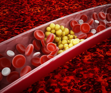 Dobry cholesterol: Czym jest i gdzie występuje?
