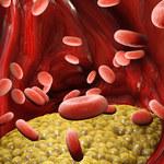 """Dobry cholesterol"" pomaga w infekcji SARS-CoV-2"