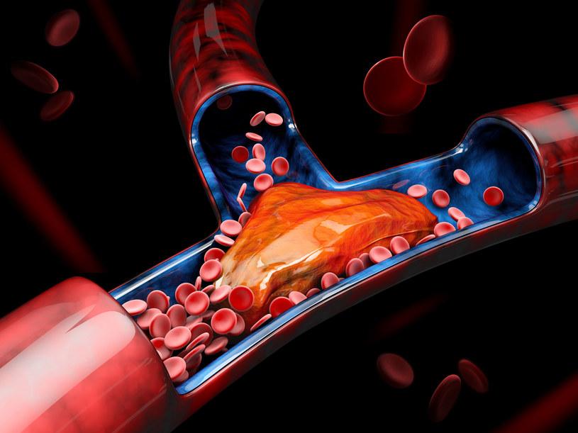 Dobry cholesterol usuwa złogi z tętni, zapobiegając tym samym miażdżycy /123RF/PICSEL