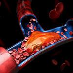 Dobry cholesterol: warto mieć go więcej!
