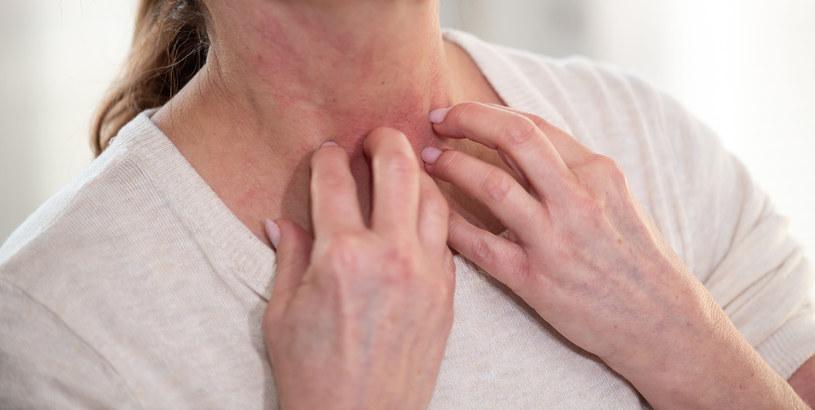 Dobrze nam znane produkty mogą wywoływać reakcje alergiczne /123RF/PICSEL