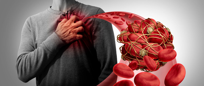 Dokonano przełomu w kontekście zrozumienia mechanizmów krzepnięcia krwi /123RF/PICSEL