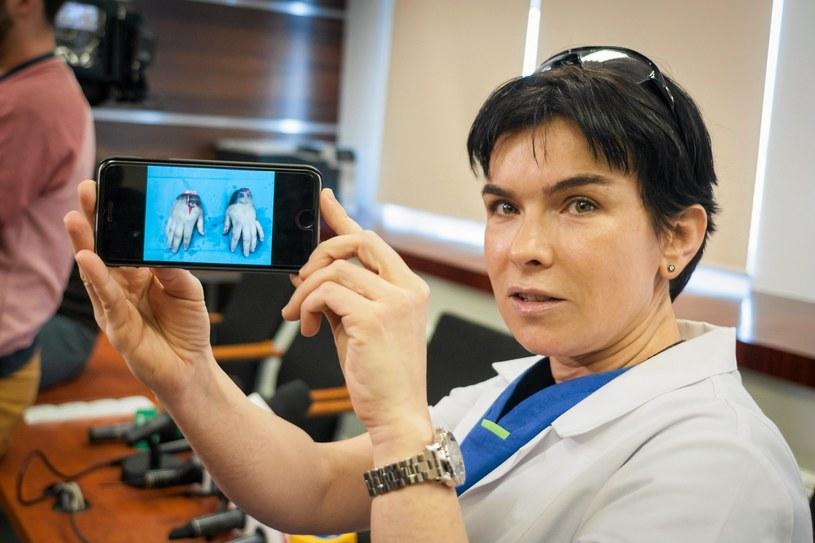 Doktor Anna Chrapusta prezentuje dziennikarzom zdjęcie odciętych dłoni /Łukasz Krajewski /