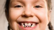 Domowe aparaty szkodzą zębom!