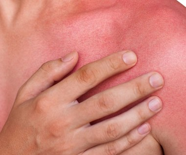 Domowe SOS na poparzenia słoneczne