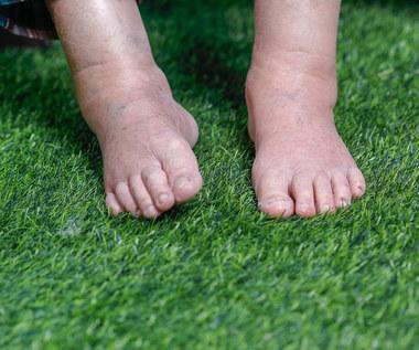 Domowe sposoby na opuchliznę nóg