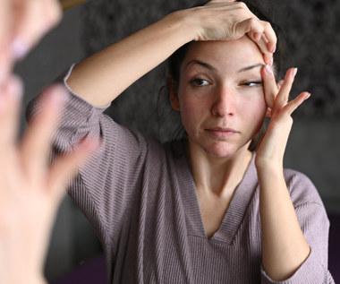 Domowe sposoby na opuchnięte oczy