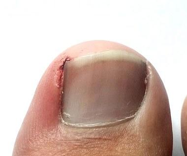 Domowe sposoby na wrastające paznokcie