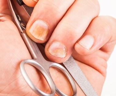 Domowe sposoby na żółte paznokcie