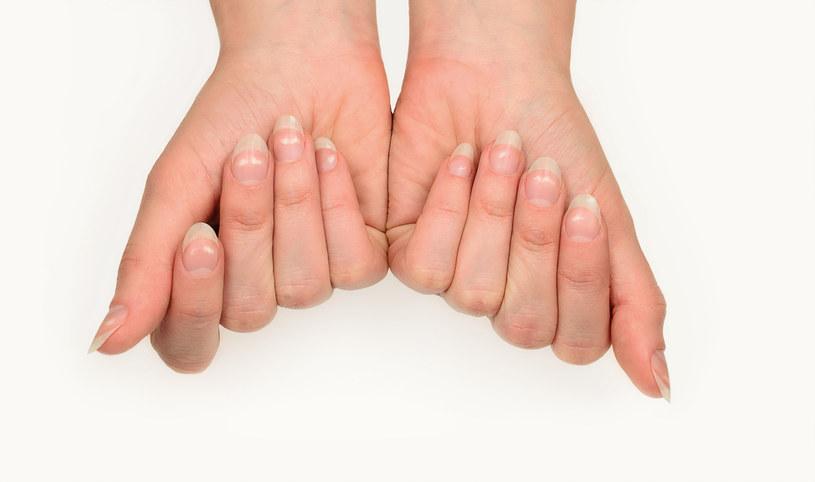 Domowe sposoby na żółte paznokcie /123RF/PICSEL