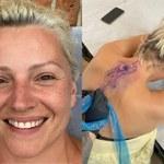 """Dorota Szelągowska usuwa tatuaż po rozwodzie! """"Dobrze, że to litera, a nie podobizna"""""""