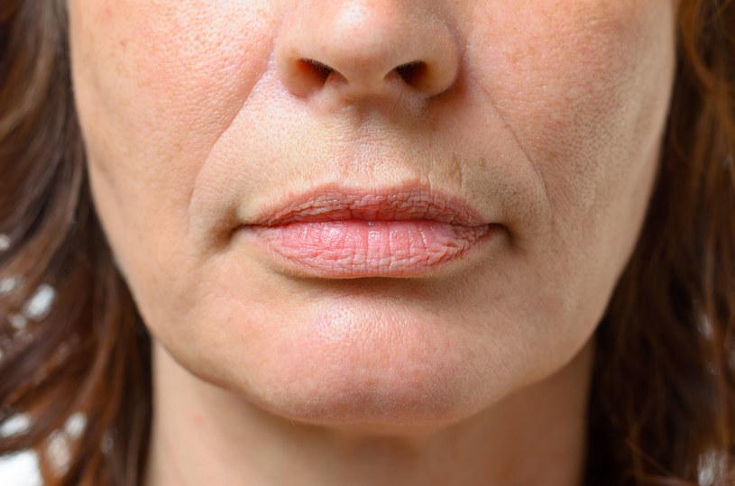 Drobne zmarszczki wokół ust to oznaka utraty nawilżenia skóry /123RF/PICSEL