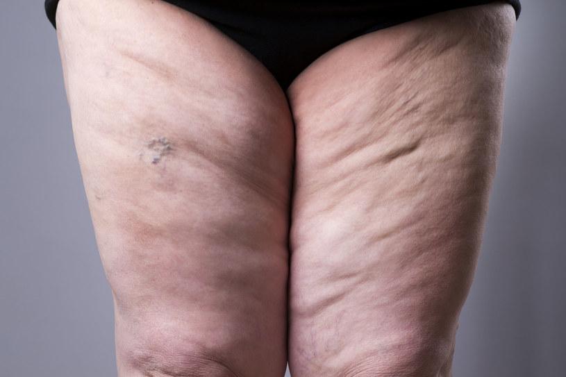 """""""Duże"""" uda, biodra i pośladki, szczupła górna połowa ciała? To może być oznaka lipodemii /123RF/PICSEL"""