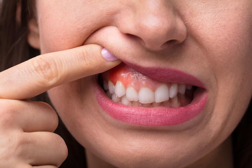 """Dziąsła często traktujemy """"po macoszemu"""", a to od nich zależy zdrowie naszych zębów /123RF/PICSEL"""