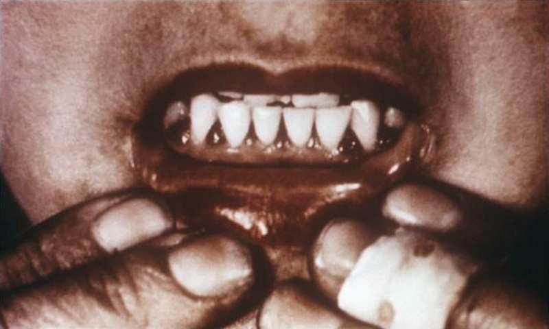 Dziąsła po zaatakowaniu organizmu przez szkorbut. Fot.  United States Department of Health and Human Services, /materiały prasowe