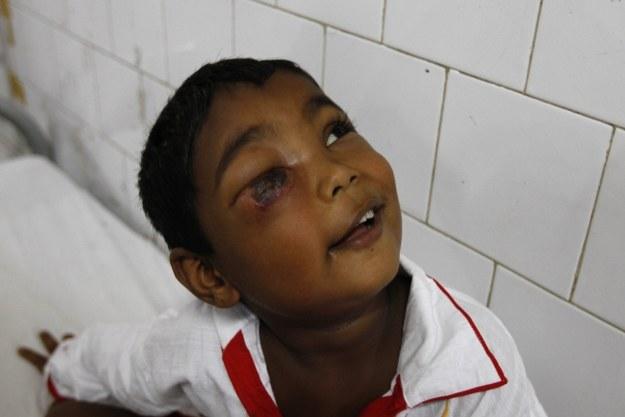 Dziecko zakażone wąglikiem /AFP