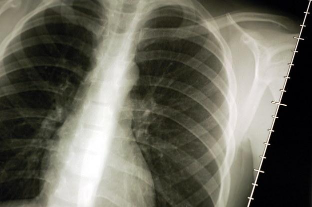 Dzięki francuskiej metodzie znacznie zwiekszona ma zostać liczba wyleczeń nowotworów płuc /Belpress.com/CARO LAURENT    /PAP
