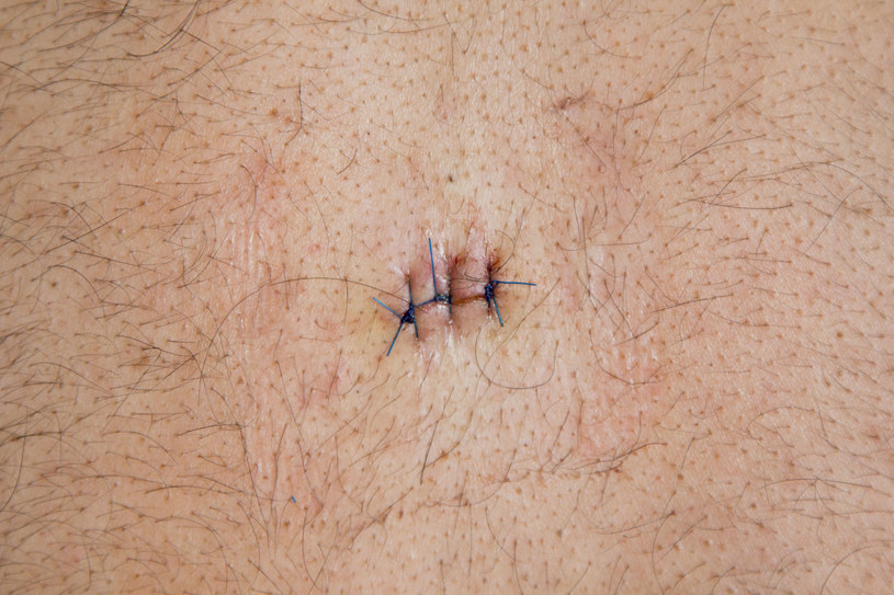 """Dzięki """"Pryszczylli"""" dermatologia stała się bardzo medialnym tematem /123RF/PICSEL"""