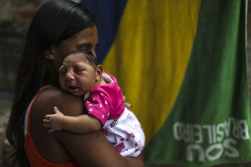 Dziewczynka chora na małogłowie /Antonio Lacerda /PAP/EPA