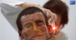 Dziwna choroba skóry - ludzie roztapiają się w słońcu