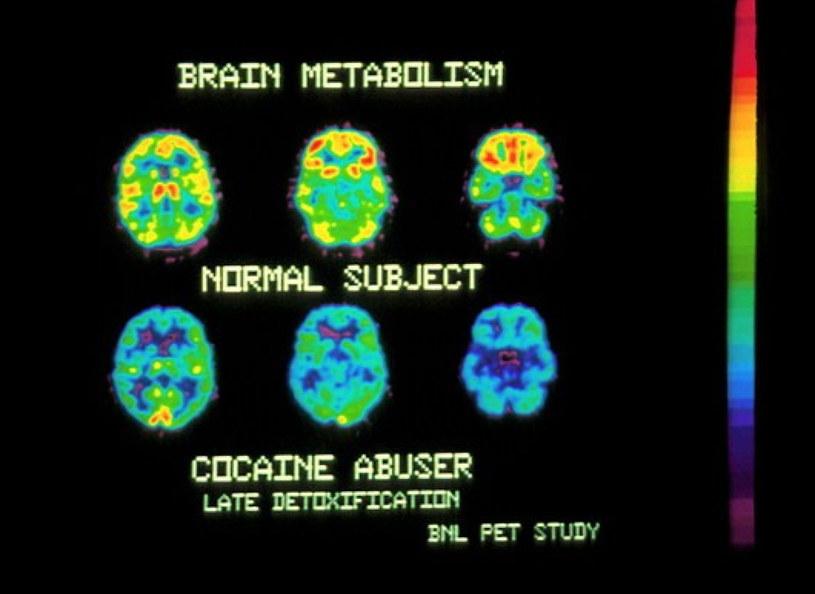 Efekt zjedzenia soli naukowcy porównują do stanu po zażyciu... kokainy /East News