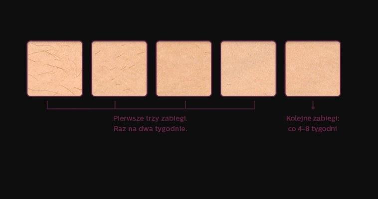 Efekty stosowania Lumea.  Źródło: philips.pl /materiały promocyjne