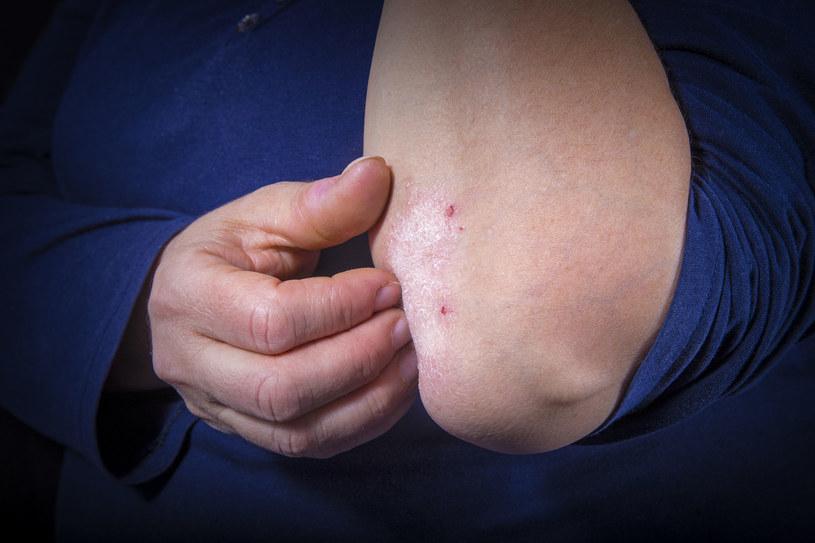 Egzema to swędzący stan zapalny skóry /123RF/PICSEL