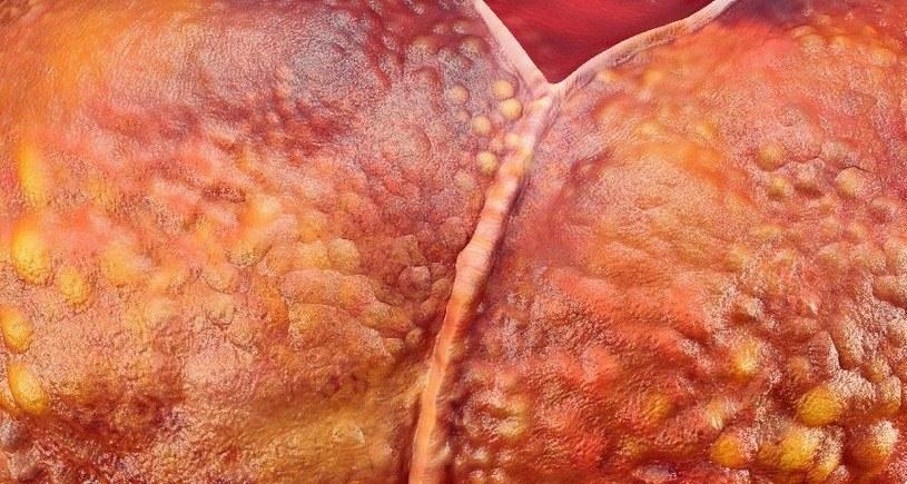 Eksperci ostrzegają, że nieprawidłowo dobrane diety mogą prowadzić do upośledzeń ważnych narządów wewnętrznych /123RF/PICSEL