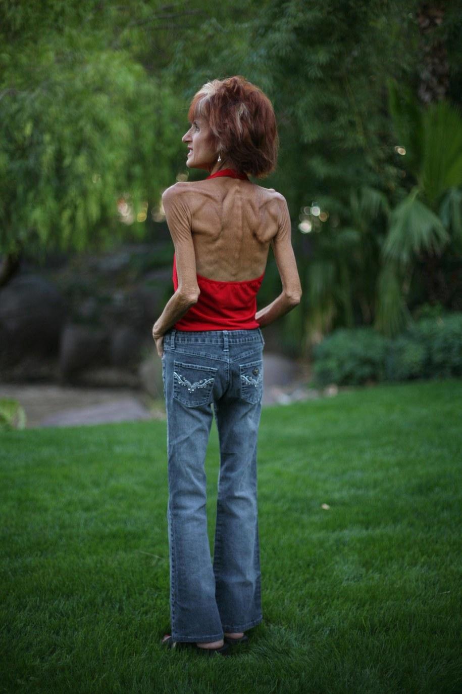 Eksperci twierdzą, że anoreksja może mieć podłoże neurobiologiczne /2008 TIFFANY BROWN/WPN    /PAP/EPA