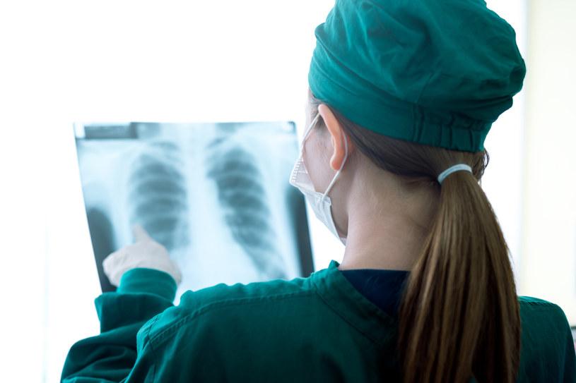 Eksperci: w leczeniu operacyjnym raka płuca cofnęliśmy się o 12 lat. Zdj. ilustracyjne /Saksit Kuson /123RF/PICSEL