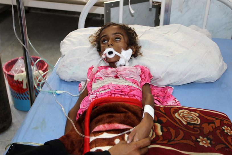 Epidemia cholery to nie jedyny problem. W Jemenie z głodu umierają dzieci /STR /AFP